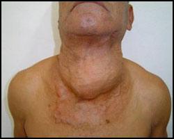 Аденома щитовидной железы, аденома щитовидной железы реферат, лечение аденомы щитовидной железы, аденома щитовидной железы лечение, лечение тиреоаденомы, тиреоаденома лечение, лечение аденомы щитовидной железы в киеве, лекарства от аденомы щитовидной железы, как лечить аденому щитовидной железы, аденома щитовидной железы лечение иглами, аденома щитовидной железы лечение лазером, аденома щитовидной железы лечение пчелами, аденома щитовидной железы лечение народное. Киев