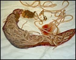 Аскаридоз, аскаридоз лечение, лечение аскаридоза, гельминты, гельминты лечение, лечение гельминтов, лекарства от аскаридоза, аскаридоз реферат, лечение аскаридоза в киеве, лекарства от гельминтов, гельминты реферат, лечение гельминтов в киеве, паразиты, паразиты лечение, лечение паразитов, как лечить паразиты, лечение паразитов в киеве, гельминтозы, гельминтозы лечение, лечение гельминтозов, гельминтозы реферат, как лечить гельминтозы, лекарства от гельминтозов. Киев