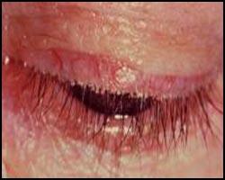 Блефарит, лечение блефарита, блефарит лечение, лекарства от блефарита, средства от блефарита, блефарит лечение лазером, блефарит лечение травами, блефарит лечение иглами, блефарит лечение народное, блефарит лечение аромамаслами, блефарит лечение пчелами, блефарит лечение пчелиным ядом, блефарит мейбомиевый, блефарит чешуйчатый, блефарит-розацеа, блефароконъюнктивит, воспаление краев век, рецидивирующий блефарит, блефароконъюнктивит ангулярный, блефарит язвенный, блефарит простой, блефарит ангулярный. Киев
