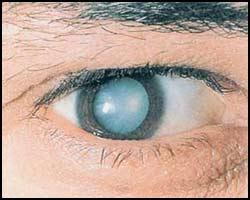 Катаракта, лечение катаракты, катаракта лечение, лекарства от катаракты, средства от катаракты, лечение катаракты в киеве, как лечить катаракту, чем лечить катаракту, катаракта лечение народное, катаракта лечение травами, катаракта лечение лазером, катаракта лечение иглами, катаракта лечение аромамаслами, катаракта лечение пчелами, катаракта лечение пчелиным ядом, катаракта лечение апитерапией, катаракта лечение каплями, катаракта лечение мазями, катаракта лечение рефлексотерапией, катаракта фото. Киев