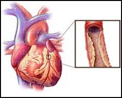 Коронарокардиосклероз, кардиосклероз, лекарства от кардиосклероза, средства от кардиосклероза, лечение кардиосклероза, кардиосклероз лечение, кардиосклероз лечение пчелами, кардиосклероз лечение травами, кардиосклероз лечение лазером, кардиосклероз лечение народное, кардиосклероз атеросклеротический, кардиосклероз смешанный, кардиосклероз диффузный, кардиосклероз интерстициальный, кардиосклероз ишемический, кардиосклероз крупноочаговый, кардиосклероз мелкоочаговый, кардиосклероз очаговый. Киев