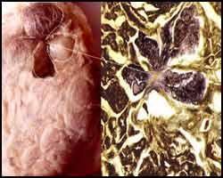 Киста щитовидной железы, лечение кисты щитовидной железы, киста щитовидной железы лечение, поликистозная щитовидная железа, киста щитовидной железы истинная, киста щитовидной железы ложная, киста щитовидной железы келлоидная, киста щитовидной железы лечение травами, киста щитовидной железы лечение лазером, киста щитовидной железы лечение пчелами, киста щитовидной железы лечение апитерапией, киста щитовидной железы лечение иглами, лекарства от кисты щитовидной железы. Киев