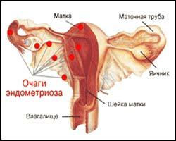 Эндометриоз, лечение эндометриоза, эндометриоз лечение, как лечить эндометриоз, лечение эндометриоза в киеве, лекарства от эндометриоза, аденомиоз, аденомиоз лечение, лечение аденомиоза, как лечить аденомиоз, лечение аденомиоза в киеве, лекарства от аденомиоза, эндометриоз лечение народное, эндометриоз лечение пчелами, эндометриоз лечение лазером, эндометриоз лечение иглами, аденомиоз лечение лазером, аденомиоз лечение травами, аденомиоз лечение иглами, аденомиоз лечение народное. Киев