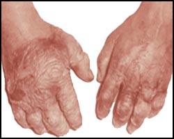 Отморожение, переохлаждение, лечение отморожения, отморожение лечение, переохлаждение лечение, как лечить отморожение, чем лечить отморожения, лечение отморожения лазером, лечение отморожения народное, лечение отморожения иглами, лечение отморожения пчелами, лечение отморожения травами, лечение отморожения аромамаслами, лечение отморожения магнитом, лечение отморожения ультразвуком, отморожение конечностей, отморожение пальцев рук, отморожение пальцев ног, отморожение ушей, отморожение носа. Киев