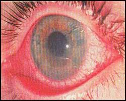 Иридоциклит, лечение иридоциклита, иридоциклит лечение, лекарства от иридоциклита, средства от иридоциклита, чем лечить иридоциклит, как лечить иридоциклит, иридоциклит лечение народное, иридоциклит лечение травами, иридоциклит лечение иглами, иридоциклит лечение пчелами, иридоциклит лечение лазером, иридоциклит лечение аромамаслами, иридоциклит лечение в киеве, иридоциклит подагрический, иридоциклит ревматический, иридоциклит острый, иридоциклит хронический, капли от иридоциклита. Киев