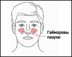 Гайморит, лечение гайморита, гайморит лечение, лекарства от гайморита, гайморит реферат, лечение гайморита в киеве, как лечить гайморит, гайморит лечение народное, гайморит лечение травами, гайморит лечение иглами, гайморит лечение лазером, гайморит лечение ультразвуком, гайморит лечение пчелами, гайморит лечение магнитом, гайморит лечение рефлексотерапией, гайморит острый, гайморит хронический, гайморит гнойный, гайморит катаральный, средства от гайморита, лечение гайморита лезером. Киев