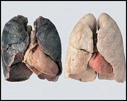 Табакокурение, никотиновая зависимость, как лечить никотиновую зависимость, тютюнокурение, никотиновая зависимость лечение, лечение никотиновой зависимости, избавление от тютюнозависимости, тютюнозависимость лечение, лечение тютюнозависимости, лекарства от тютюнозависимости, тютюнокурение лечение, лечение тютюнокурения, лекарства от тютюнокурения,  табачная зависимость, лечение табачной зависимости, табачная зависимость лечение, лекарства от табачной зависимости, как лечить табачную зависимость. Киев