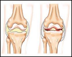 Артрозо-артрит, лечение артрозо-артрита, артрозо-артрит лечение, лекарства от артрозо-артрита, средства от артрозо-артрита, как лечить артрозо-артрит, чем лечить артрозо-артрит, артрозо-артрит лечение травами, артрозо-артрит лечение народное, артрозо-артрит лечение лазером, артрозо-артрит лечение пчелами, артрозо-артрит лечение апитерапией, артрозо-артрит лечение иглами, артрозо-артрит лечение рефлексотерапией, артрозо-артрит лечение пчелиным ядом, артрозо-артрит лечение ультразвуком. Киев