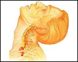 Остеохондроз, лечение остеохондроза, остеохондроз лечение, лекарства от остеохондроза, средства от остеохондроза, как лечить остеохондроз, чем лечить остеохондроз, остеохондроз лечение народное, остеохондроз лечение травами, остеохондроз лечение лазером, остеохондроз лечение иглами, остеохондроз лечение магнитом, остеохондроз лечение ультразвуком, остеохондроз лечение пчелами, остеохондроз лечение апитерапией, остеохондроз лечение аромамаслами, остеохондроз лечение рефлексотерапией. Киев