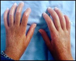 Склеродермия, системная склеродермия, склеродермия системная, склеродермия лечение, лечение склеродермии, лекарства от склеродермии, средства от склеродермии, очаговая склеродермия, очаговая склеродермия лечение, лечение очаговой склеродермии, лекарства от очаговой склеродермии, коллагеноз, коллагеноз лечение, лечение коллагеноза, склеродермия лечение народное, склеродермия лечение пчелами, склеродермия лечение лазером, склеродермия лечение иглами, склеродермия фото, sclerodermia. Киев