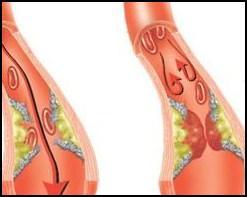 Тромбоз, тромбоз вен, тромбоз вен нижних конечностей, лечение тромбоза вен ног, лечение тромбоза вен нижних конечностей, тромбоз вен нижних конечностей лечение, лечение тромбоза вен, тромбоз вен лечение, образование тромбов, тромбы, тромбы лечение, сгущение крови, тромбоз глубоких вен нижних конечностей, тромбоз глубоких вен нижних конечностей лечение, лечение тромбоза глубоких вен нижних конечностей, тромбоз поверхностных вен нижних конечностей, тромбоз поверхностных вен нижних конечностей лечение. Киев