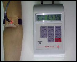 Наружное лазерное облучение крови, лазерное облучение крови, облучение крови, НЛОК, лечение наружным лазерным облучением крови, наружное лазерное облучение крови лечение, наружное лазерное облучение крови профилактика. Киев.